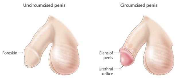 preturi chirurgie curbura penisului