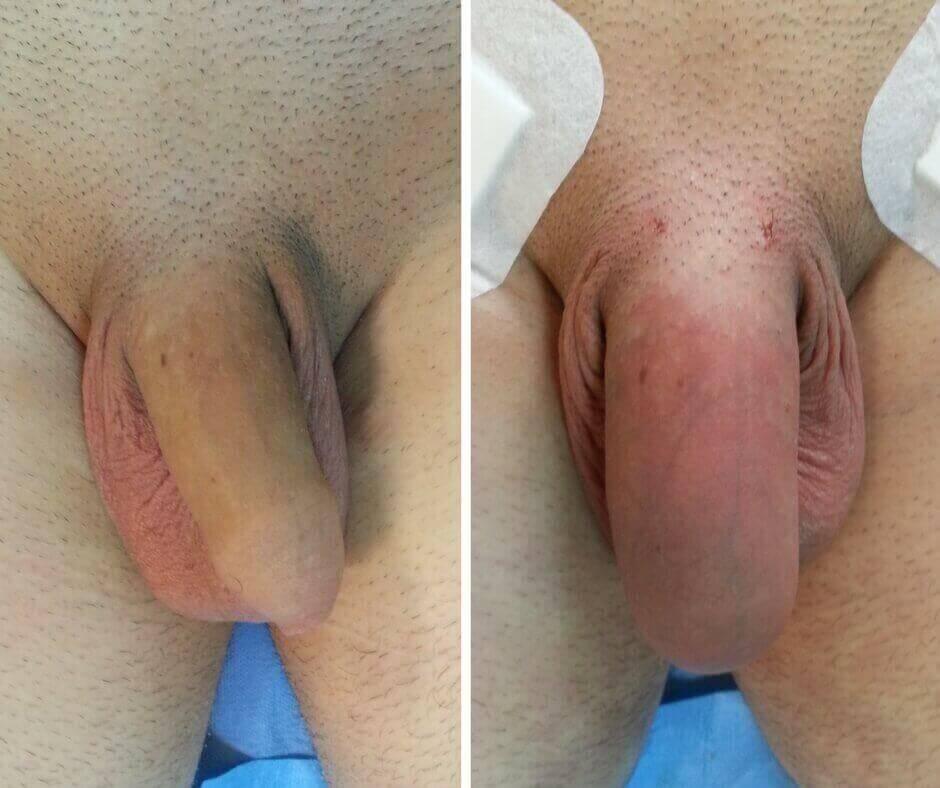 marire penis cosmedica