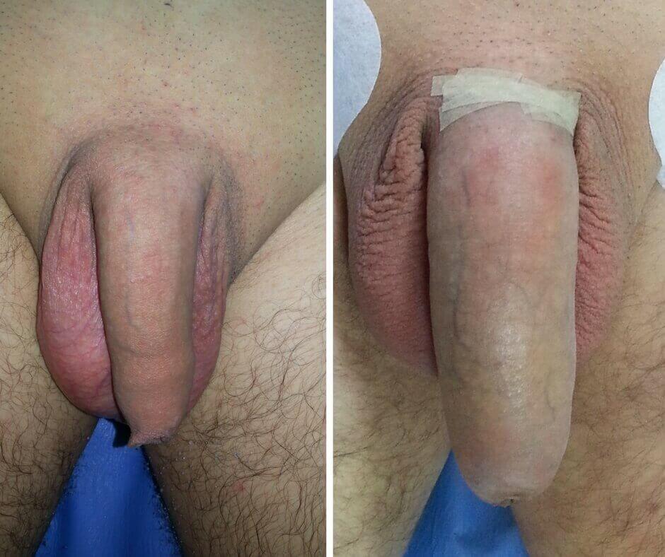 îmbunătățirea erecției cu nutriție dimensiuni normale ale penisului masculin